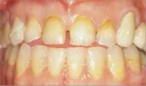 Rehabilitación completa, fundas de porcelana y tratamiento periodontal