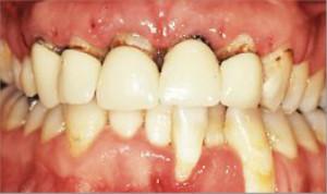 Rehabilitacón completa sobre implantes