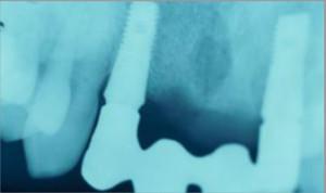Rehabilitación sobre dos implantes