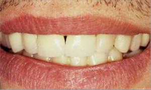 Ortodoncia y rehabilitaciones estéticas