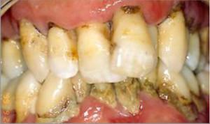 Tratamiento periodontal y estética dental