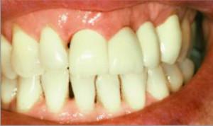 Cirugía periodontal y estética dental